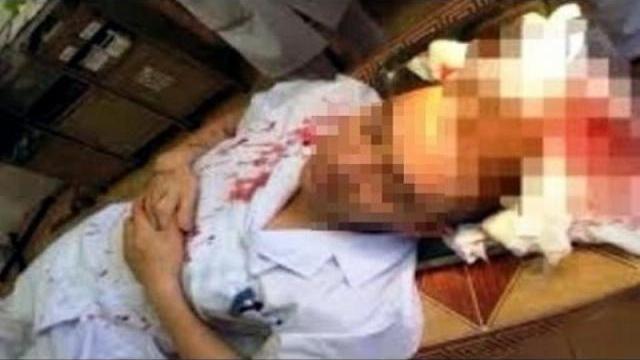 Bác sĩ bị hành hung đổ máu làm sáng tỏ sự tình