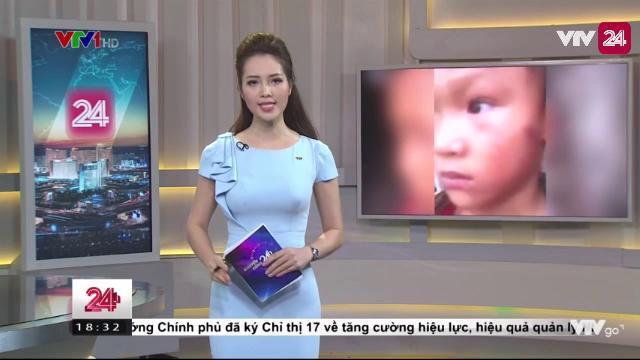 Xác nhận thông tin bé 5 tuổi bị dì ruột bạo hành | VTV24