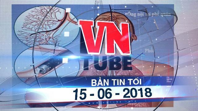 Bản tin VnTube tối 15-06-2018: Bệnh nhân tử vong sau khi nội soi phế quản ở Bệnh viện Bạch Mai