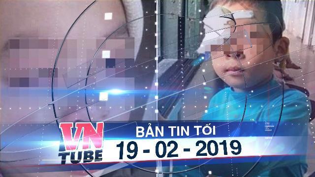 Bản tin VnTube tối 19-02-2019: Học sinh nghi bị cô giáo đánh, hỏng thủy tinh thể