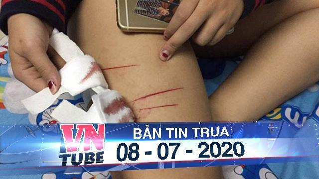 Nữ sinh ở TPHCM bị rạch đùi gây thương tích trên đường đi học về