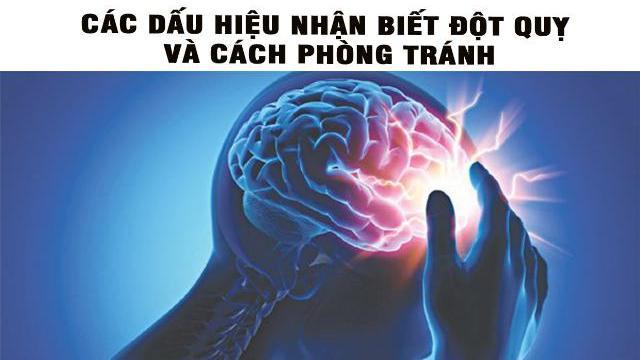 Các dấu hiệu nhận biết đột quỵ và cách phòng tránh