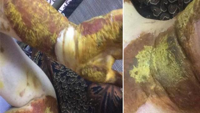 Vụ nữ sinh bị bỏng ở trường: Hiệu trưởng ra tay chặn báo chí