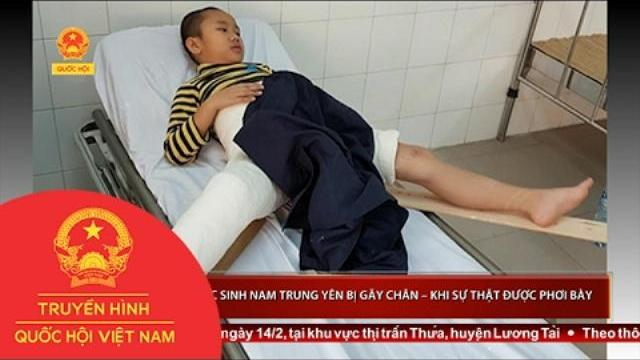 Vụ học sinh Nam Trung Yên bị gãy chân – khi sự thật được phơi bày