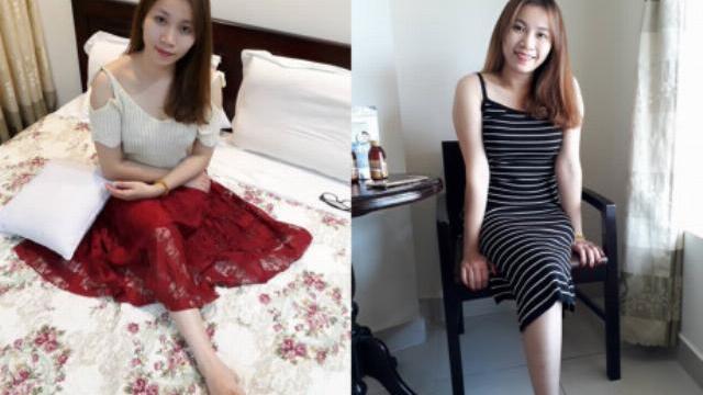 Nữ 9X xinh đẹp một chân gây 'sốt' mạng: 'Em lạc quan, kiếm tiền mua chân giả!'