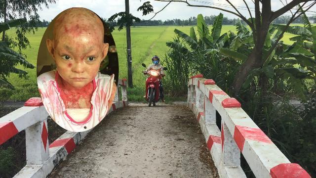Rơi nước mắt nhìn cô gái lở loét khắp người đem hết tiền nhà hảo tâm tặng xây cây cầu giúp dâ