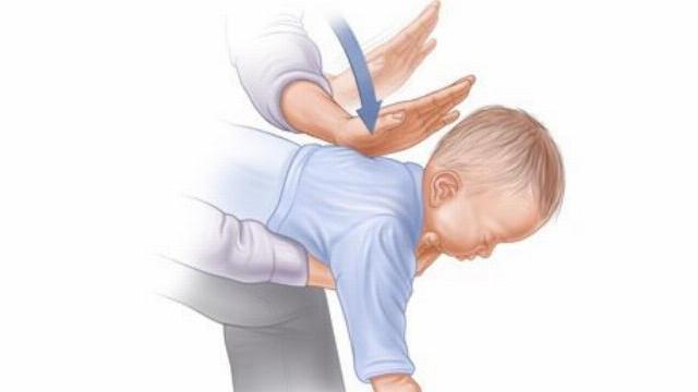 Phương pháp xử trí hóc dị vật ở trẻ nhỏ!
