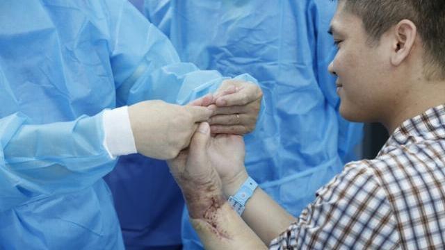 Lần đầu tiên Việt Nam ghép thành công cánh tay từ người hiến còn sống